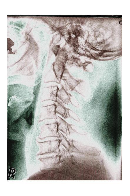 HWS - Halswirbels&auuml;ulen-Verletzungen, http://www.ariplex.com ...